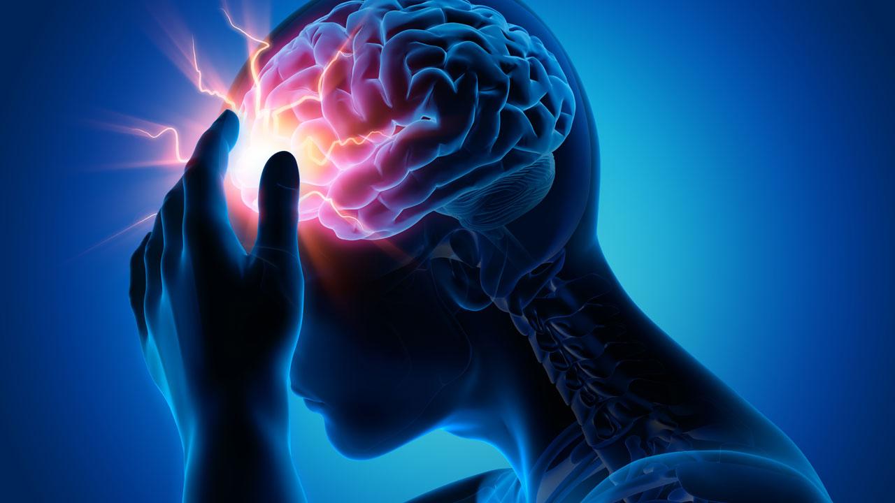 moždani-udar